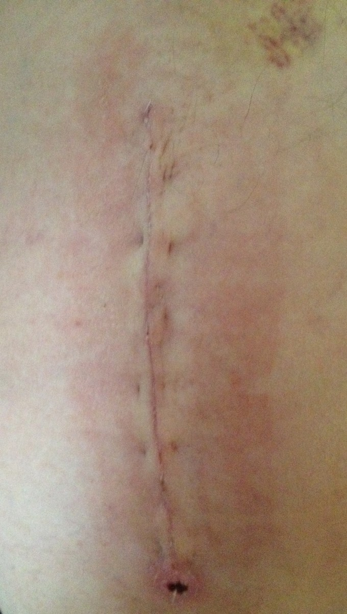 8 inch incision scar at 2 weeks - note bruising and swelling