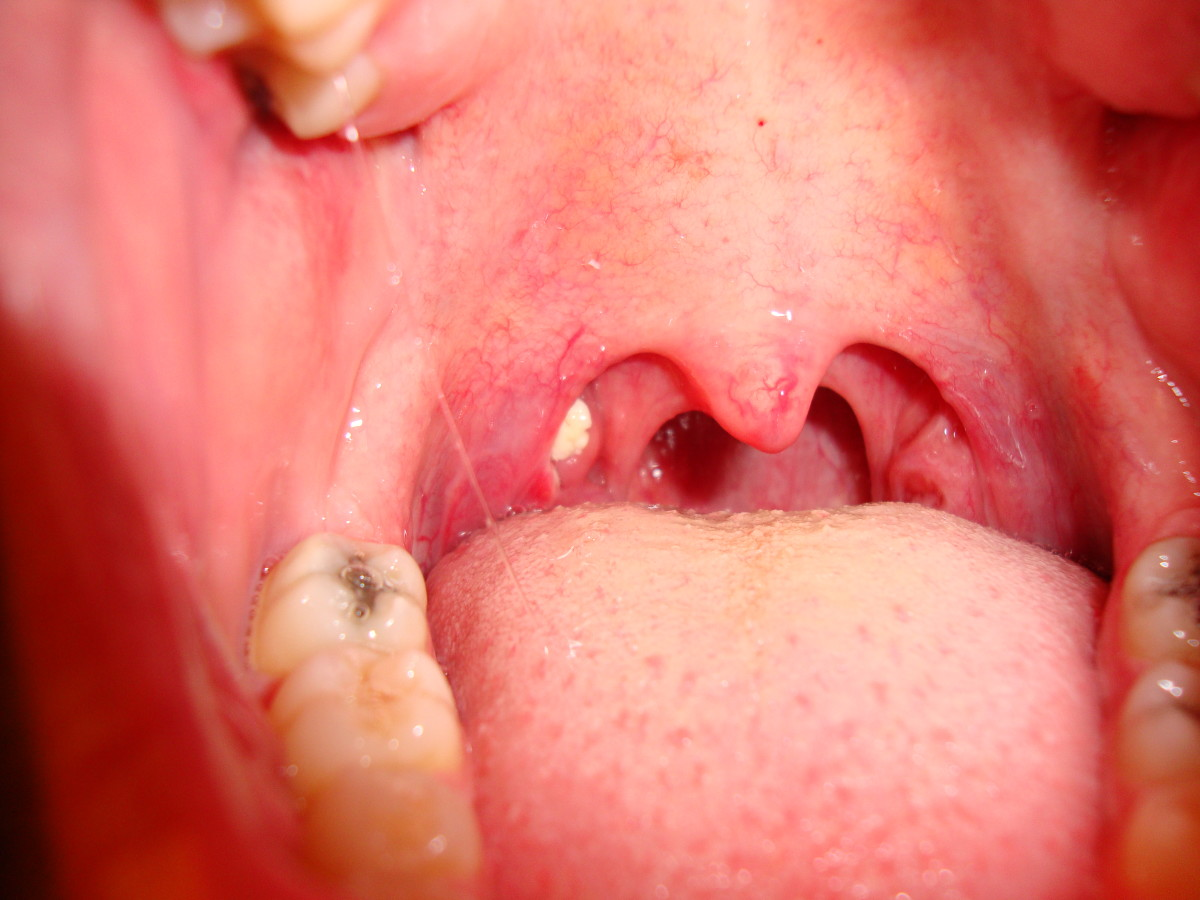 A pair of tonsils with a tonsillolith in the left side.