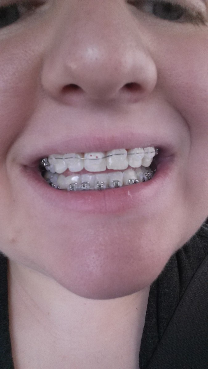 Ceramic Braces on top
