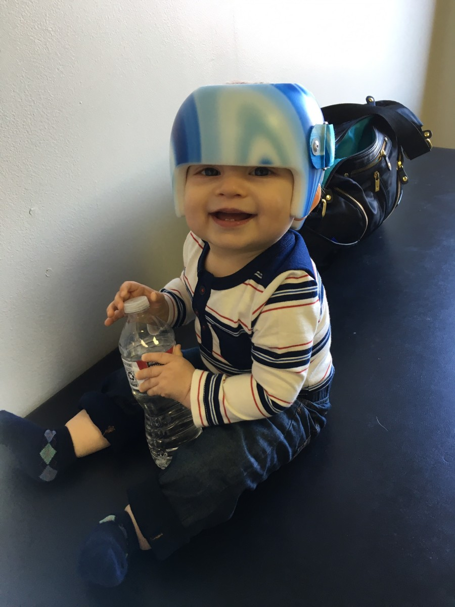 helmet-therapy-for-babies-my-sons-story