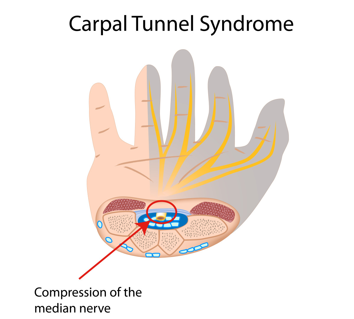 A diagram of the Carpal Tunnel and median nerve in the wrist