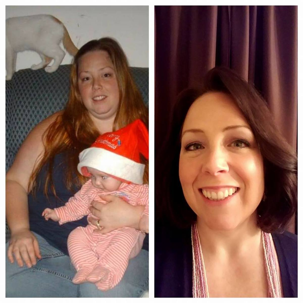 This is me, before and after bariatric surgery!