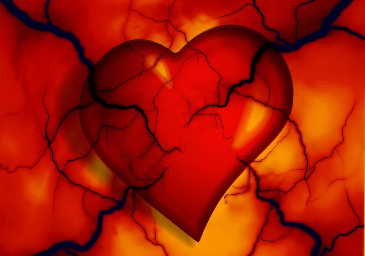 Cardiac Rehabilitation in Canada