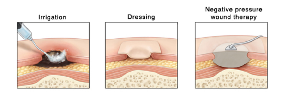 Pressure Ulcers: Treatment and Prevention