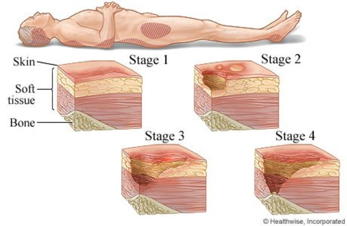 foot diagram pressure ulcer pressure ulcers: cause | owlcation the arches of foot diagram #9