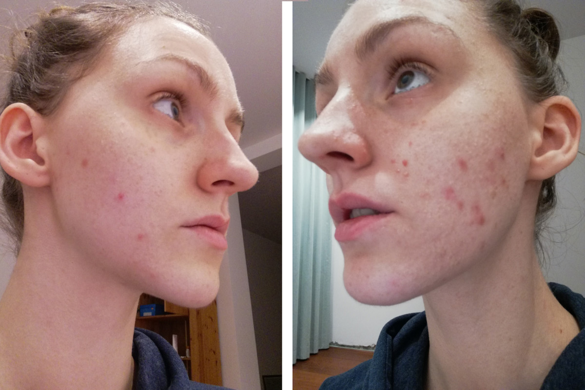 If a picker focuses on one area to pick, you'll see an asymmetry in skin marks. This can be another sign to look out for. This picture is the left and right side is me after a week of increased skin picking, you can clearly see my picking area.