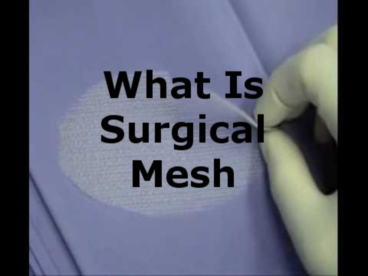 What Is Surgical Mesh?