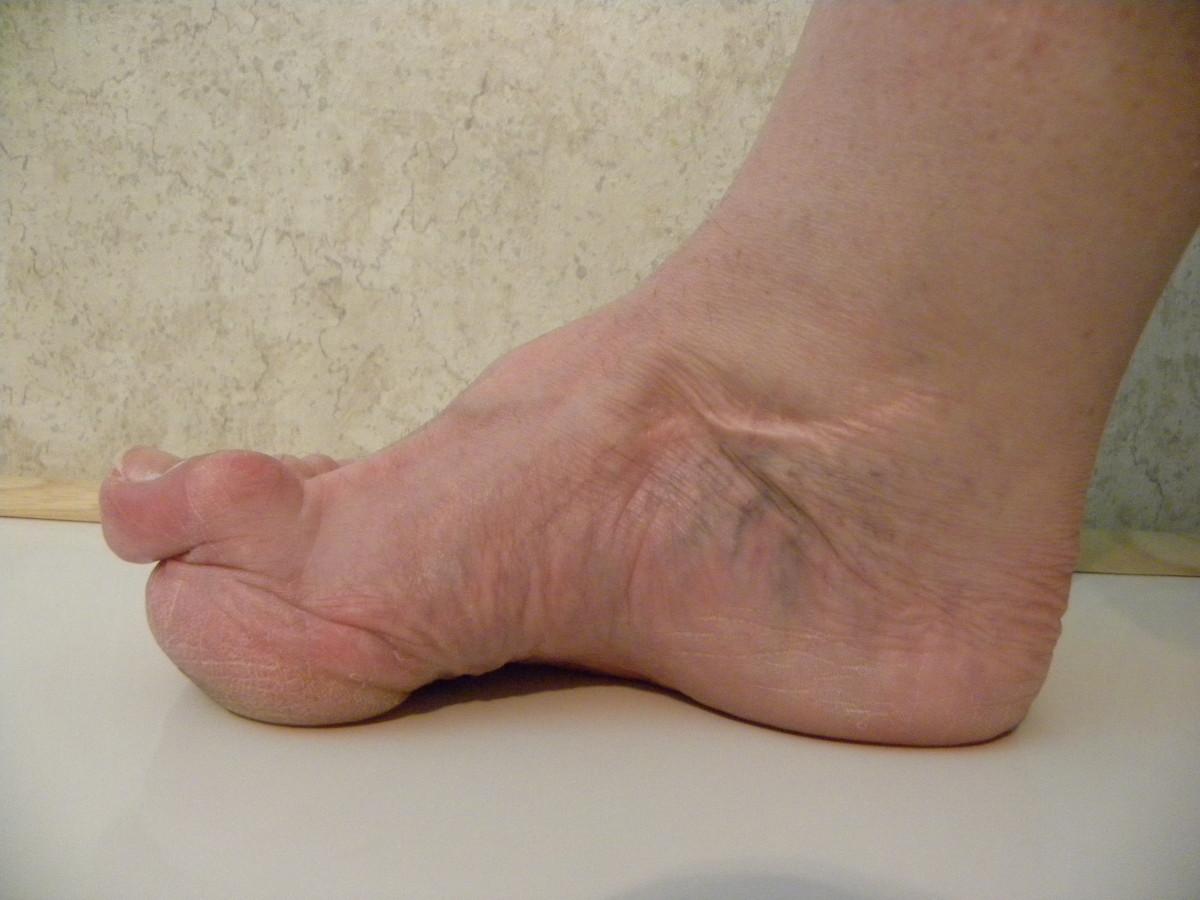 My deformed right foot.