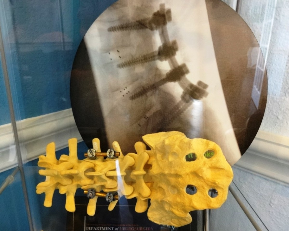 Doctor's model of spinal fusion surgery with screws and pedicles.