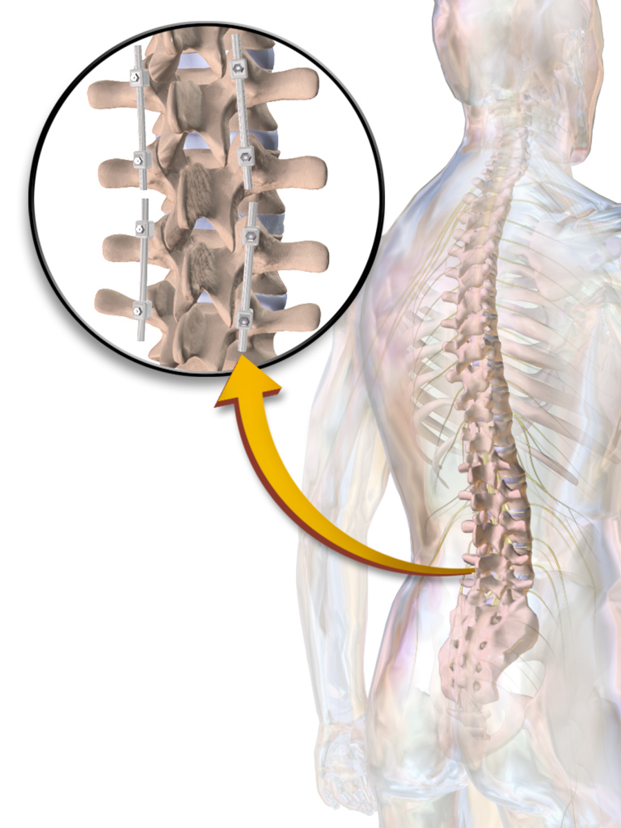 Illustration of Spinal Fusion