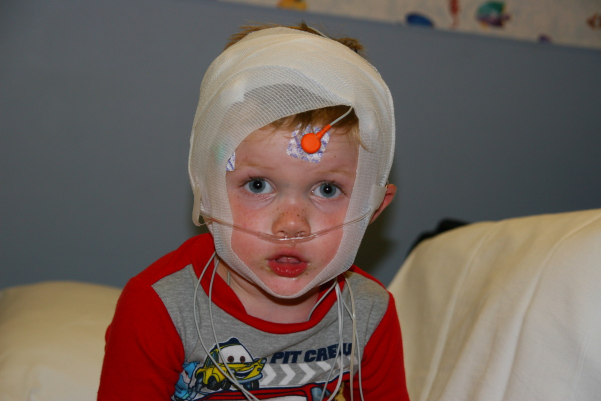 Pediatric Sleep Study: All hooked up and ready for bed. It might be hard to get to sleep with all of this equipment on!