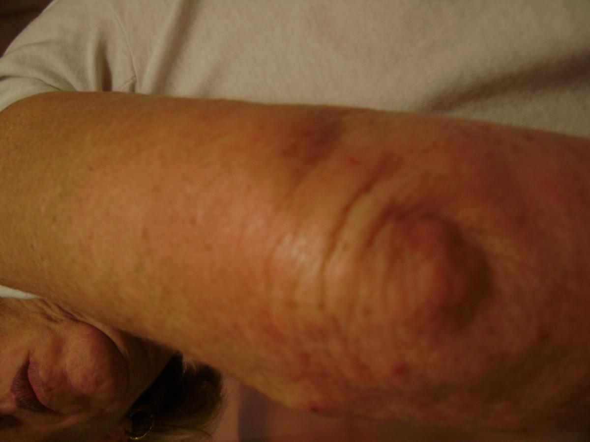 """Elephant Skin"" Recovery Process"