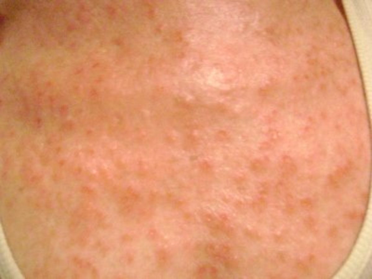 Mysterious Itchy Red Bumps