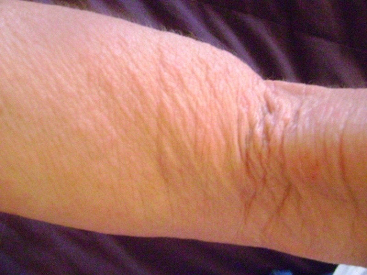 """Steroid Inserts List """"Thinning of Skin"""" as a """"Side-Effect"""
