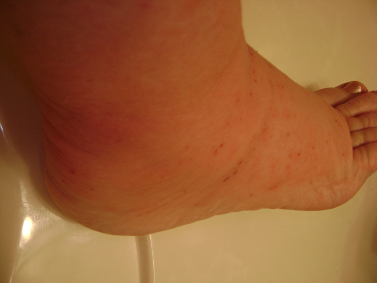 Feet Swelling Made Walking Difficult