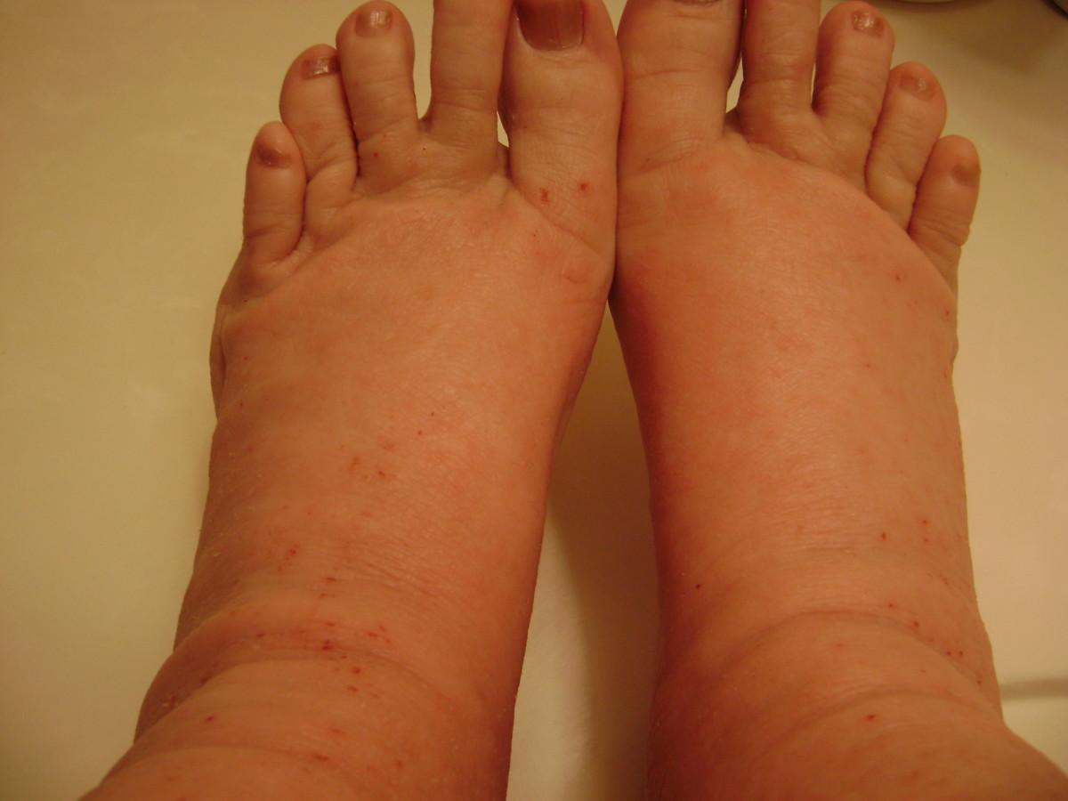 Fat, sore feet