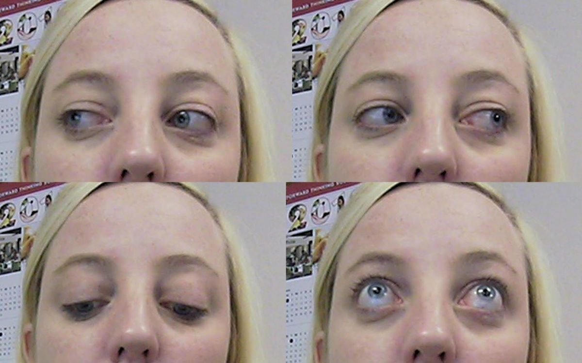 Thyroid eye disease. Eyes can become large and swollen.