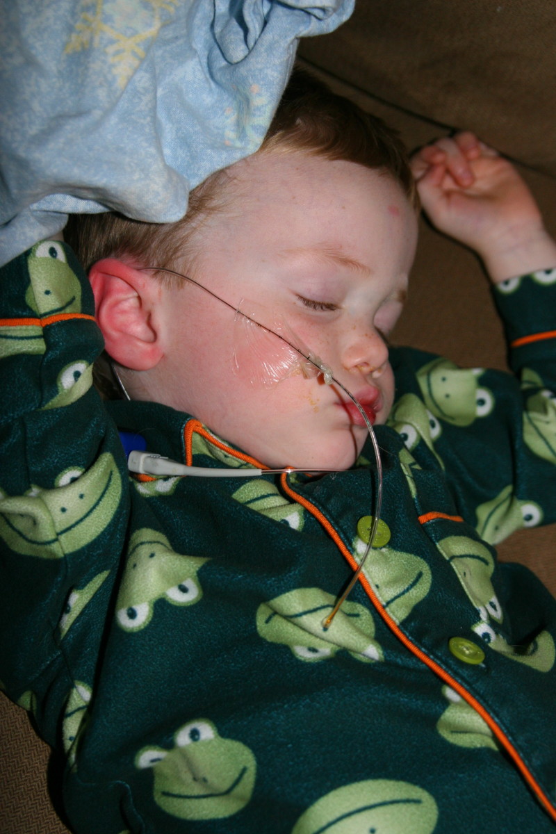 Our son's first airway probe became dislodged at night when the medical tape became wet from a runny nose. The test will have to be repeated if the probe comes out too early. Request medical-grade adhesive tape to prevent this from happening!