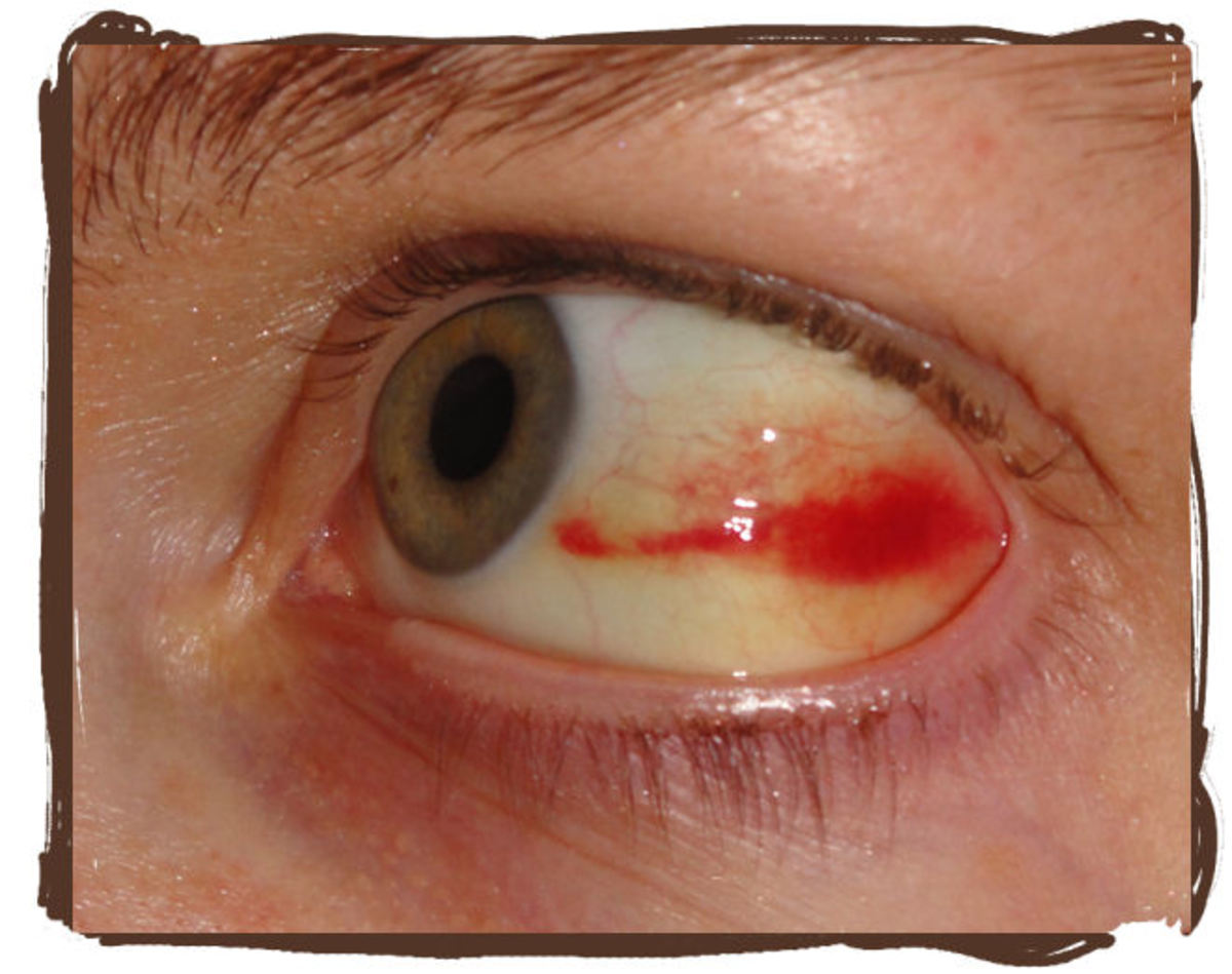Some of the redness on top and bottom have started to clear, turning yellow, but the red is creeping towards my iris.