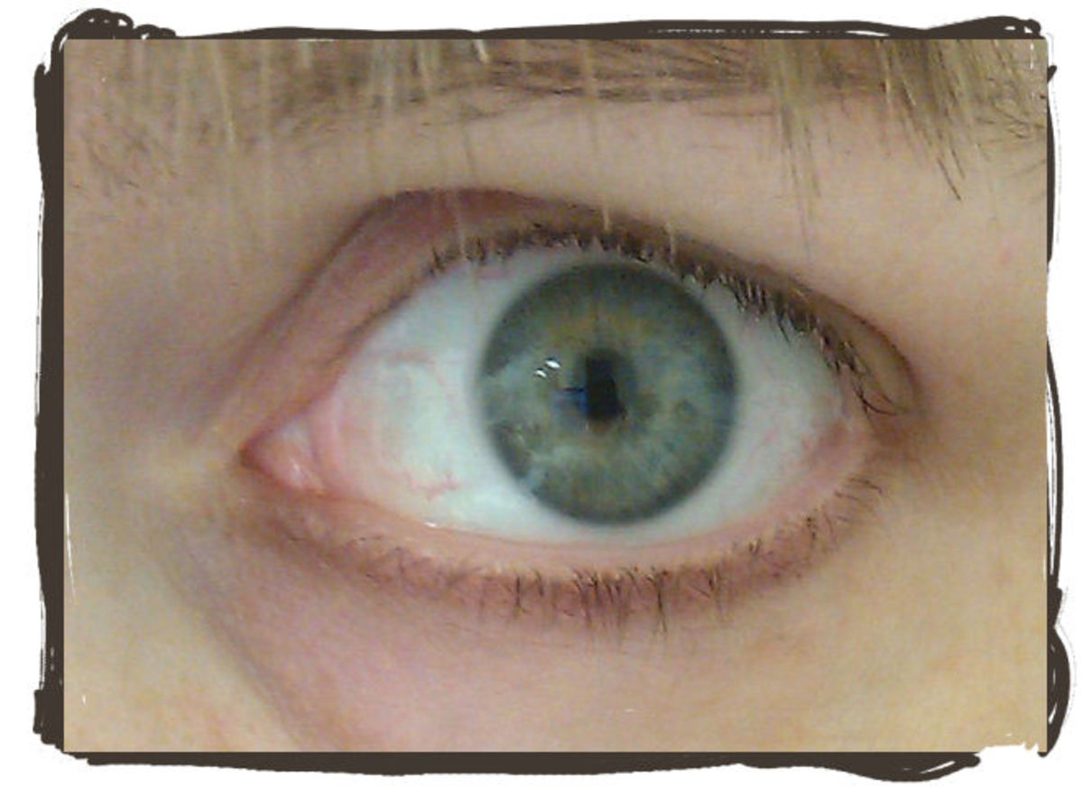 A little bit of red in the eye is normal. This is how my eye looks normally, and after completely healing.
