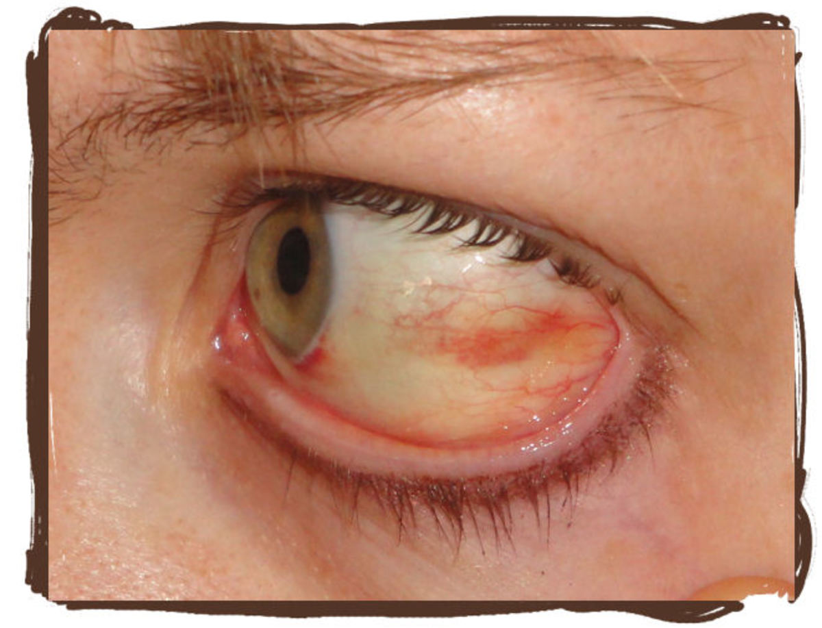 On day 5 my eye is still healing nicely. You can see how much of the red has gone away in just under a week. You can also see that there is still a little red spot near the iris.