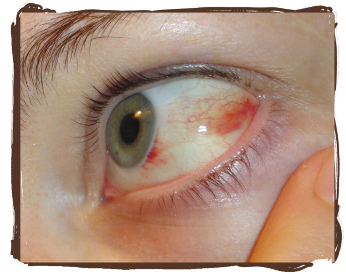 Day 4: You can see that most of the redness has started to heal. The small bit near my iris still remains with a healed portion between the two red patches.