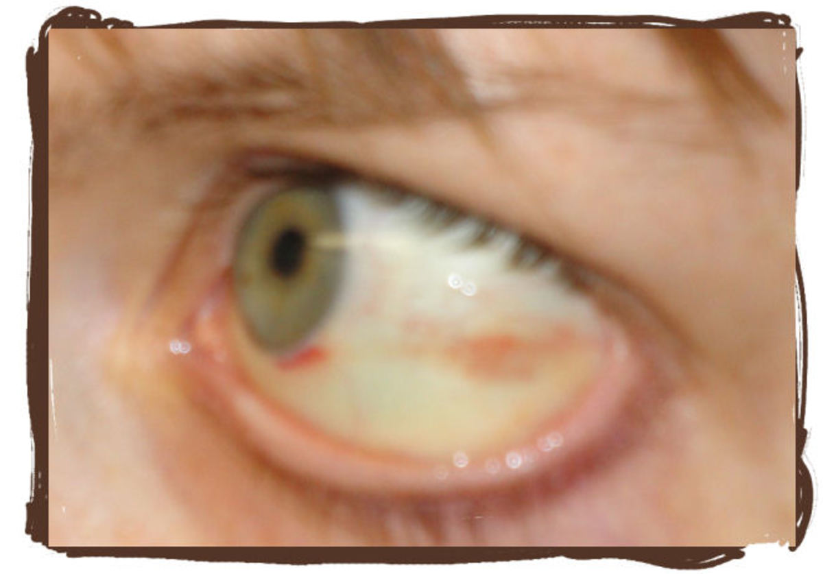 Day 6: Wow! What an improvement. My eye is starting to look almost normal again. Whew!