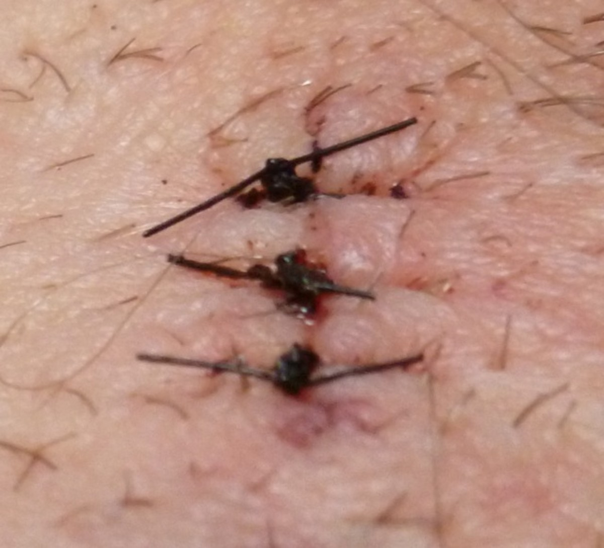3 stitches for the pea sized cyst incision;