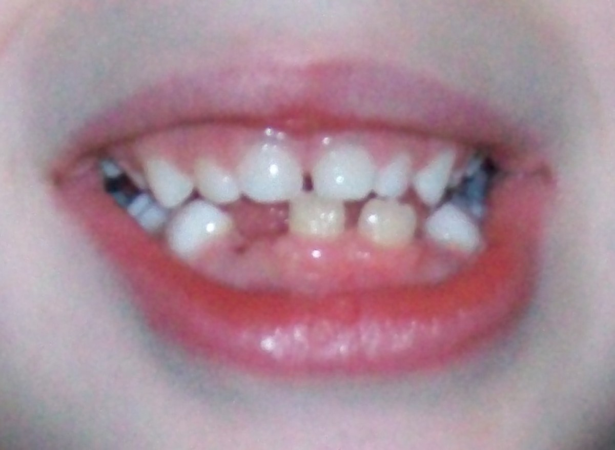 View of smile at two weeks after extraction. The adult central incisors are still out of place, but now there is space to begin moving them.