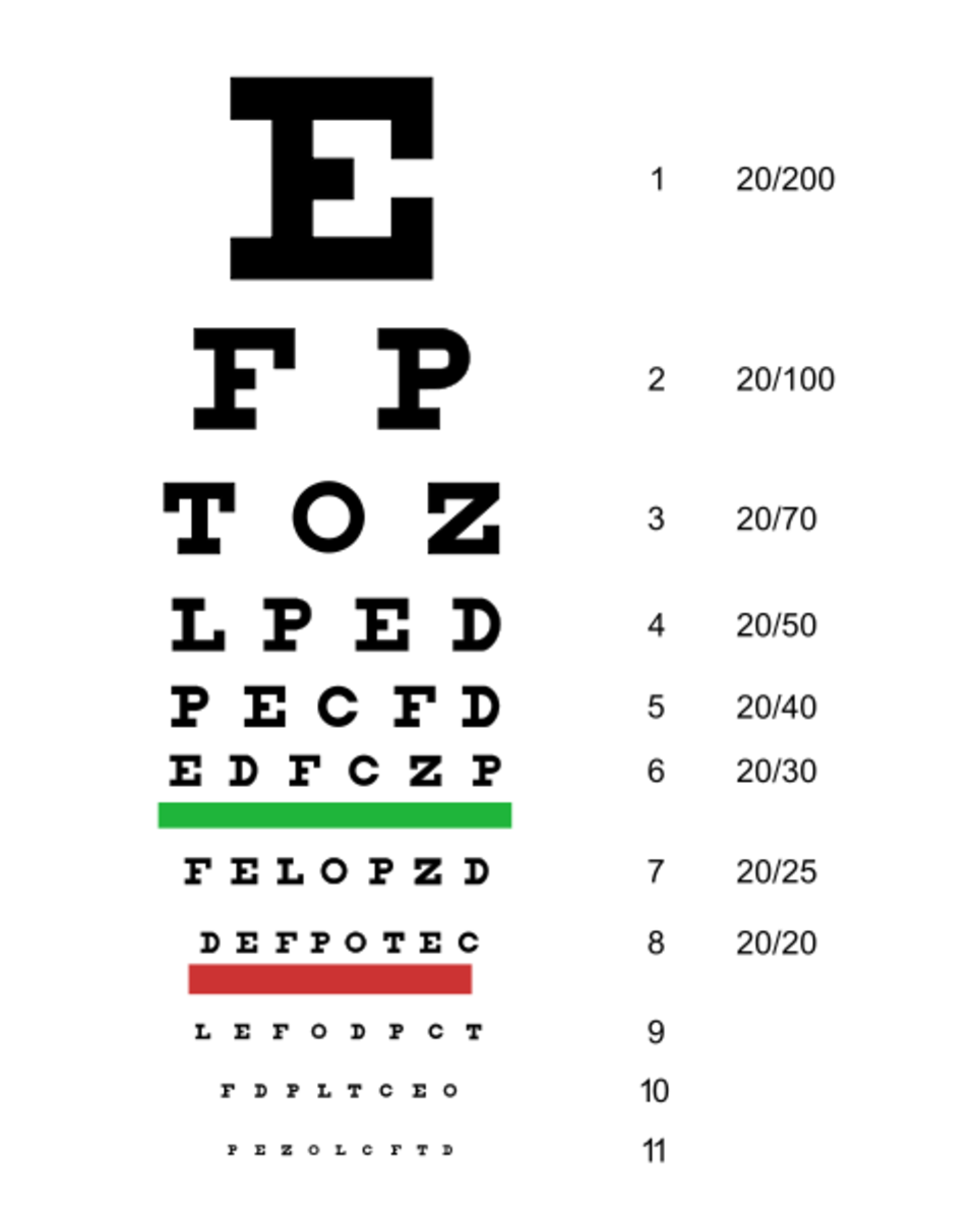 The eye chart reported 20.20 vision - beyond my wildest hopes.