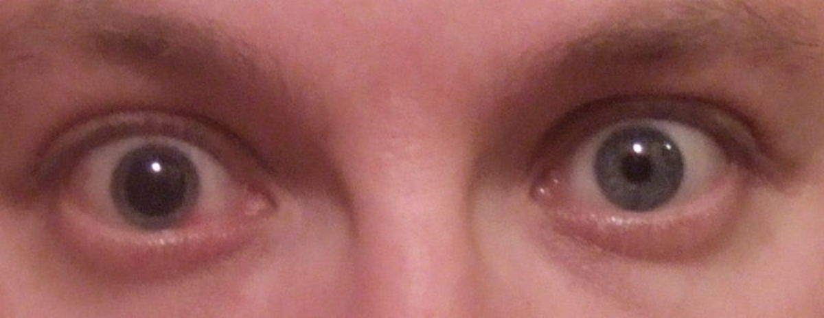 For the next 10 days I would live with one dilated eye.  Not really comfortable, but necessary for best results.