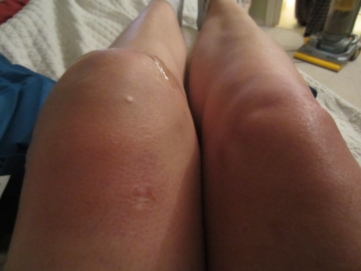 The size difference between your two knees will be fairly drastic.