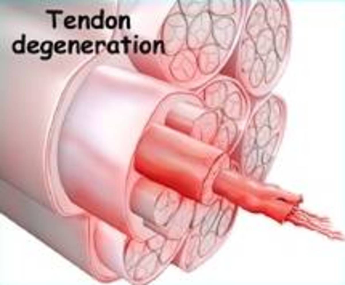 Cross-section of a degenerative tendon with tendinosis