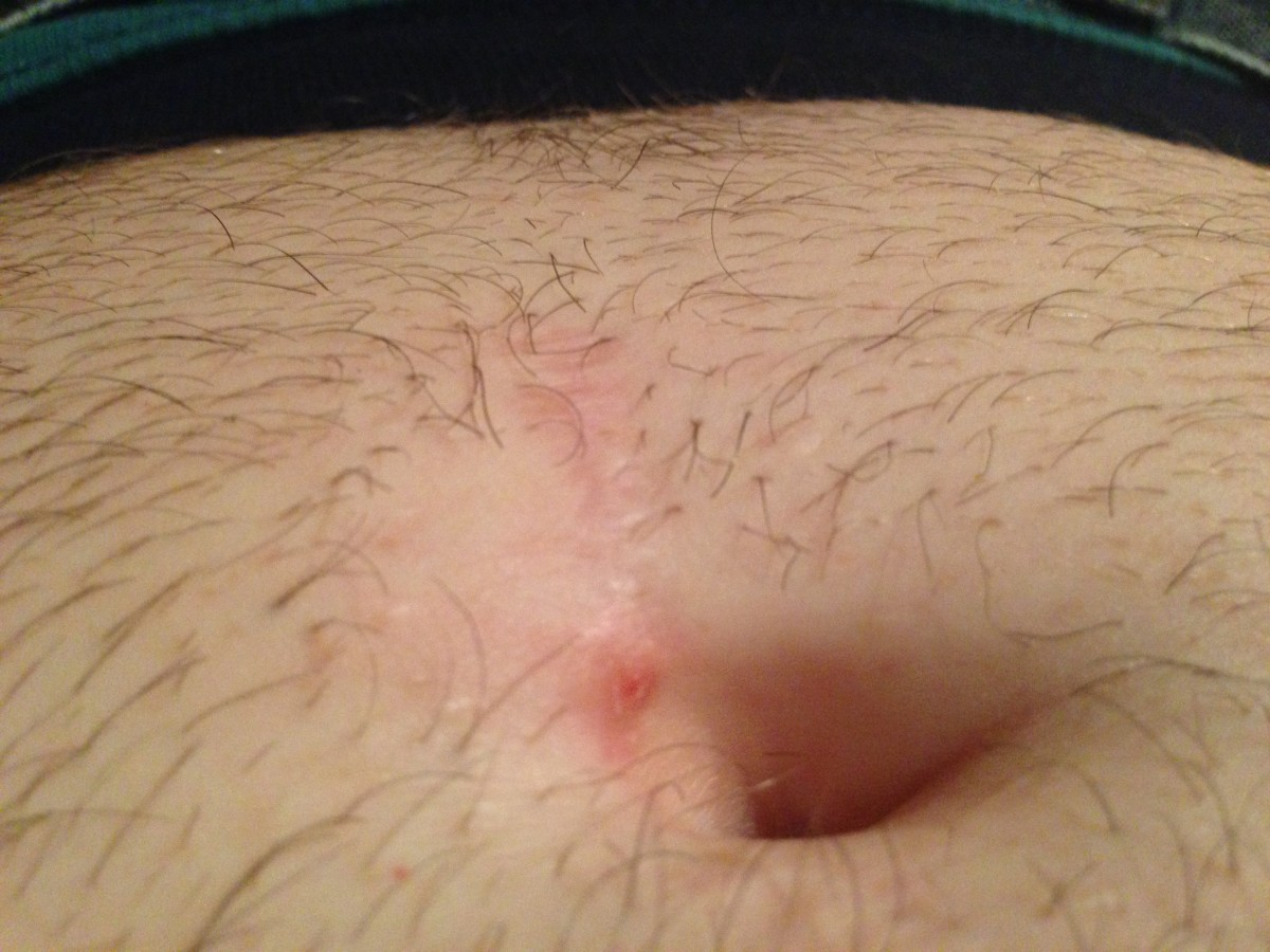 About two years after a colectomy, the scar is just barely visible. More importantly, my gut feels great (no more diverticulitis).