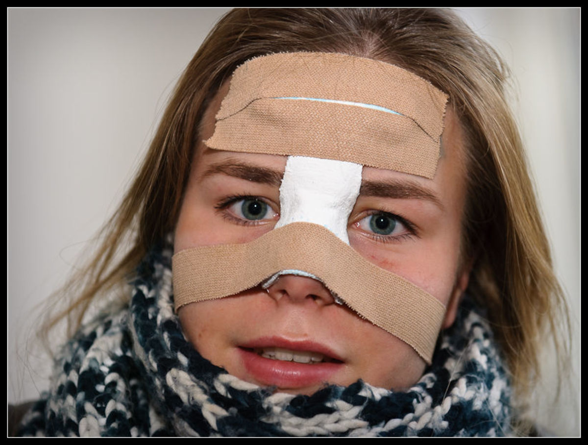 This girl broke her nose during an indoor hockey game.