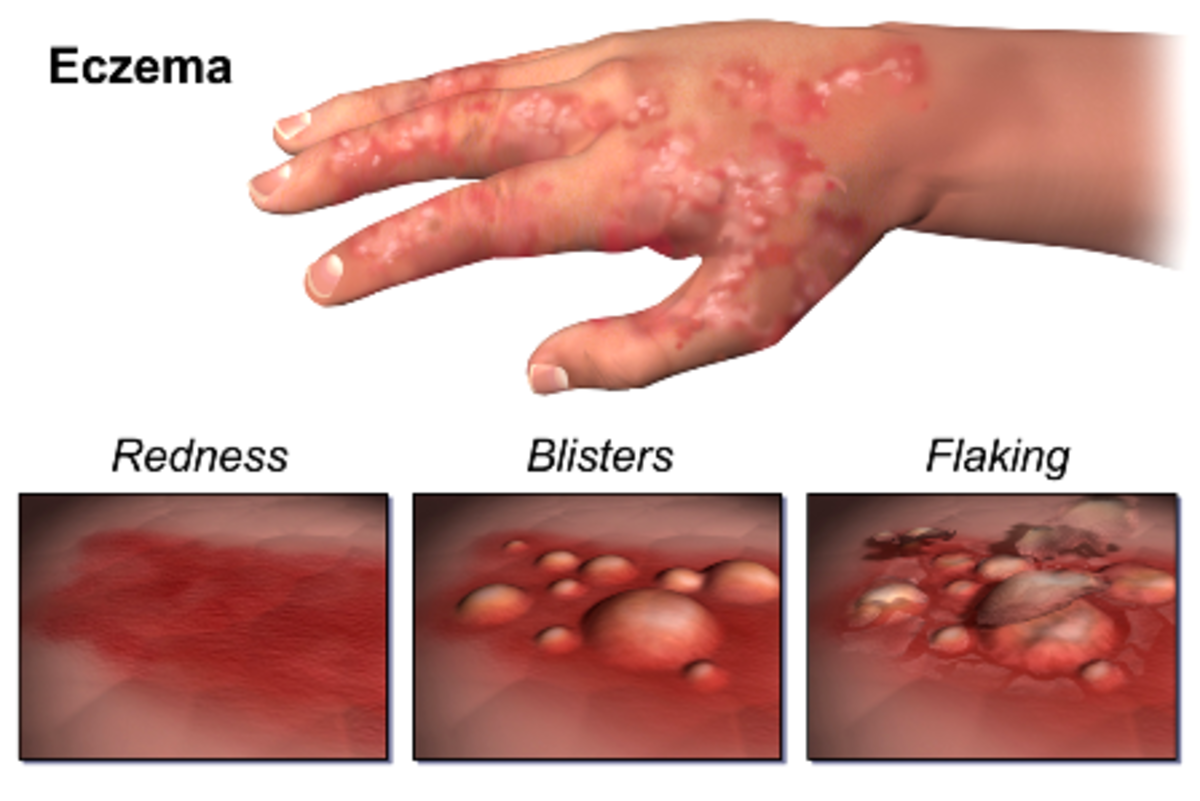 How Eczema Breaks Out
