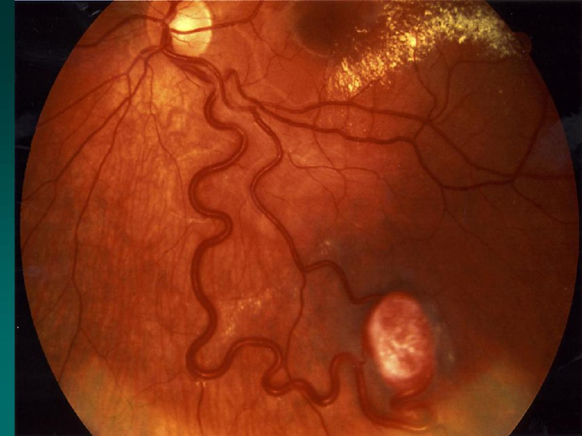 A VHL tumor of the eye