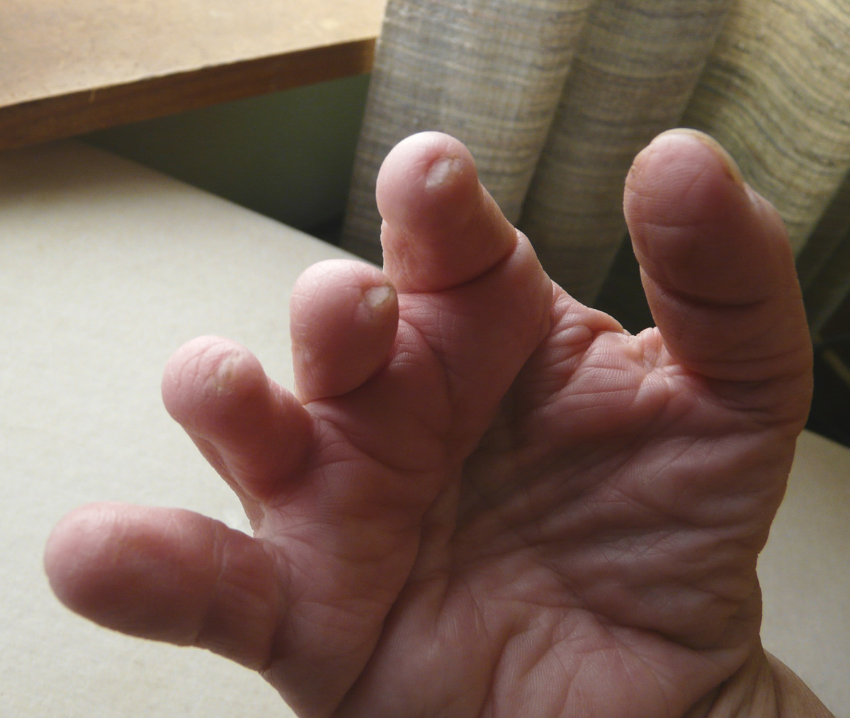 Tiny nails on tips of fingers affected by  symbrachydactyly