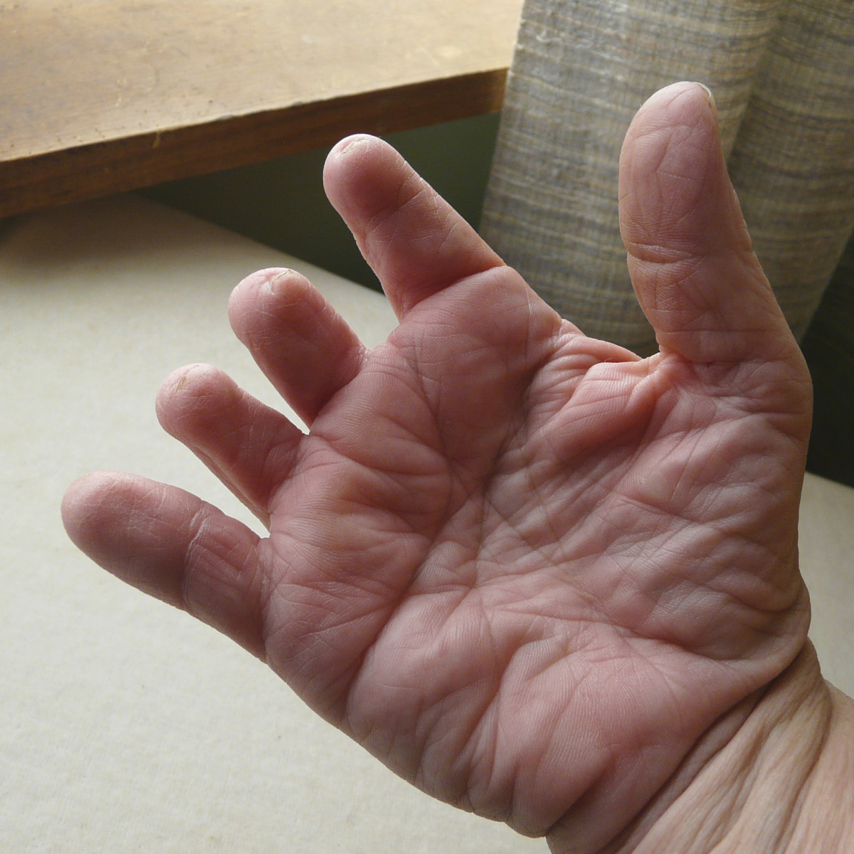 Palm of right hand affected by symbrachydactyly