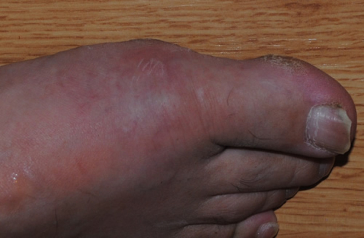 food for prevention of gout home remedies to control uric acid in blood uric acid level gout