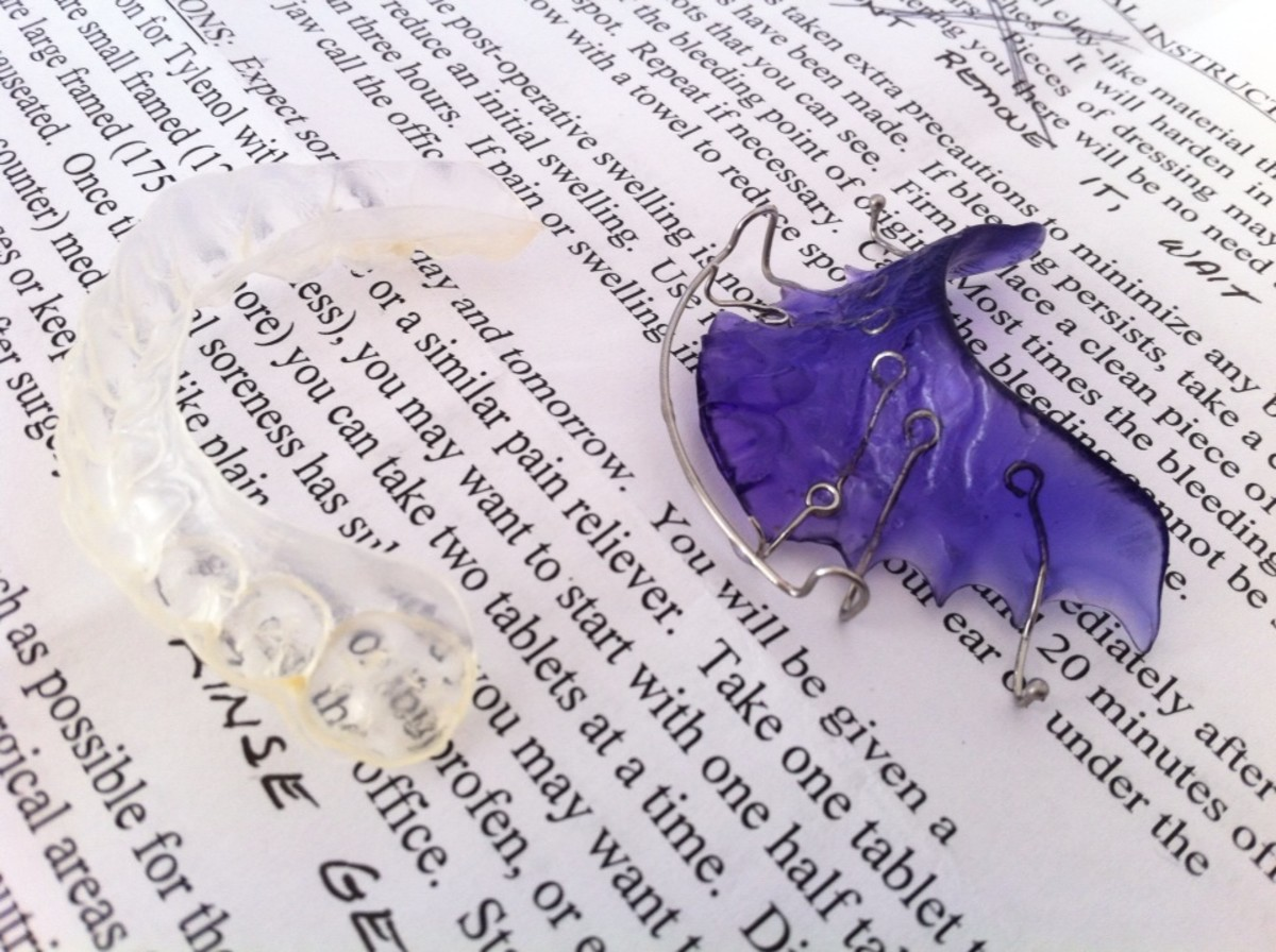 I was relieved to find that my retainers, which I wear at night, were NOT responsible for worsening my gums' condition.