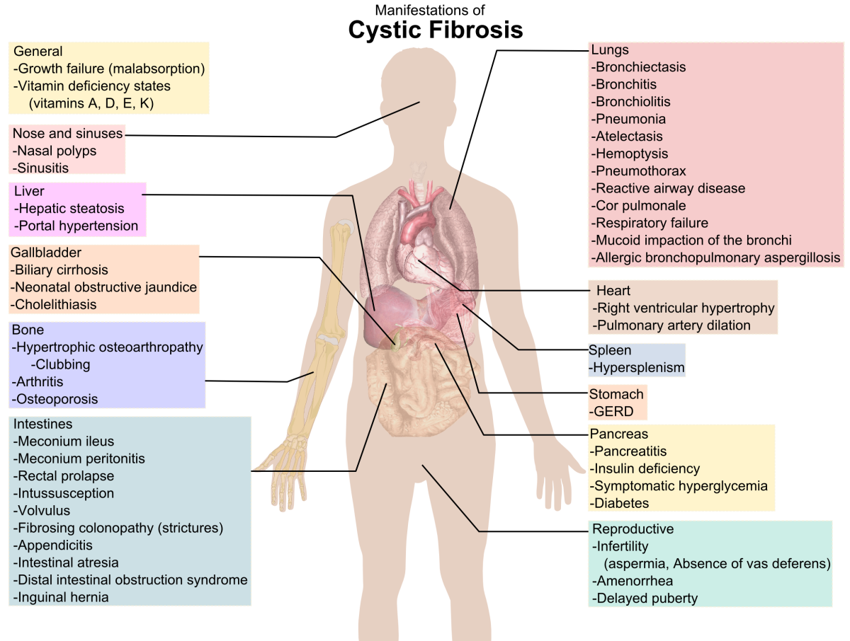 Cystic fibrosis affects many different body systems.