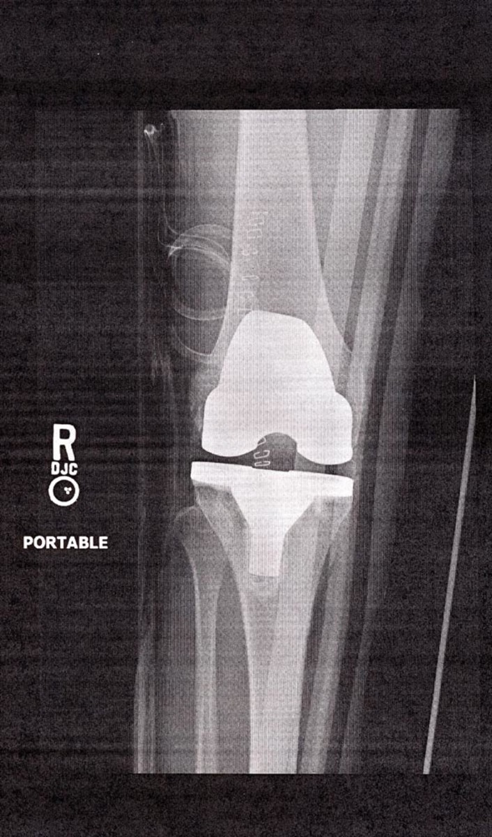 Knee x-ray, one day post-operative (rear view).