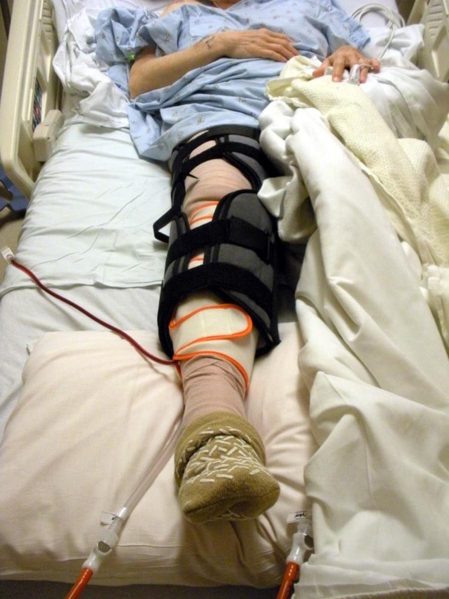 Post-operative knee splint.