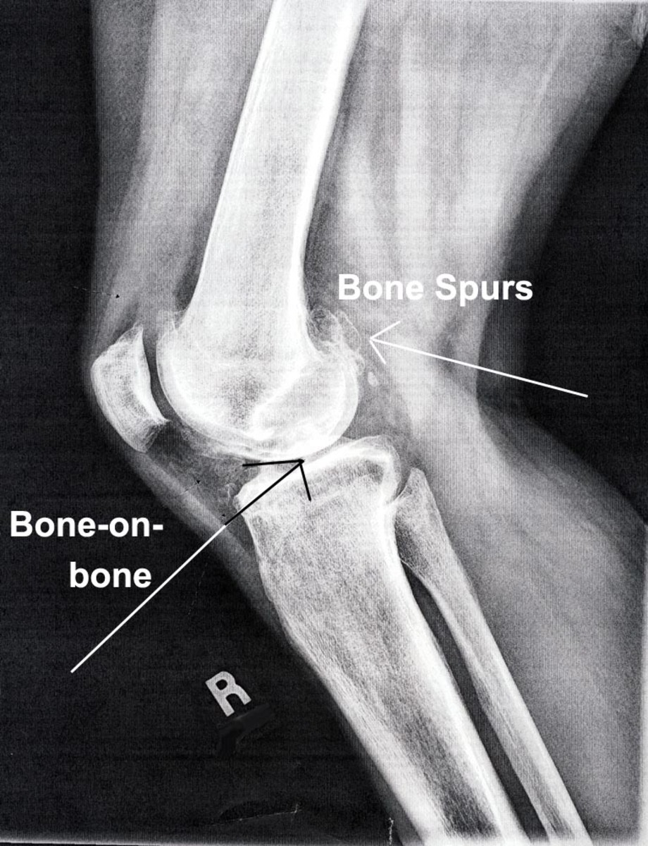 X-ray of arthritic knee, side view