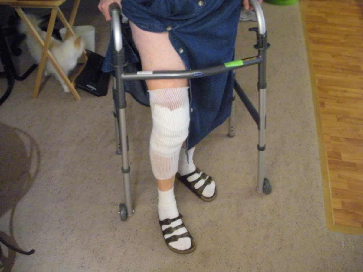 Knee surgery 2 days post-operative; greatly reduced bandaging.