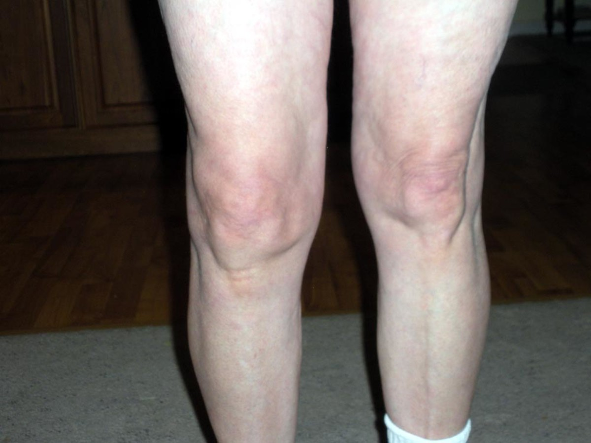 Arthritic knee--at 12 years post-injury (right knee--shown at the left side of this photo.)