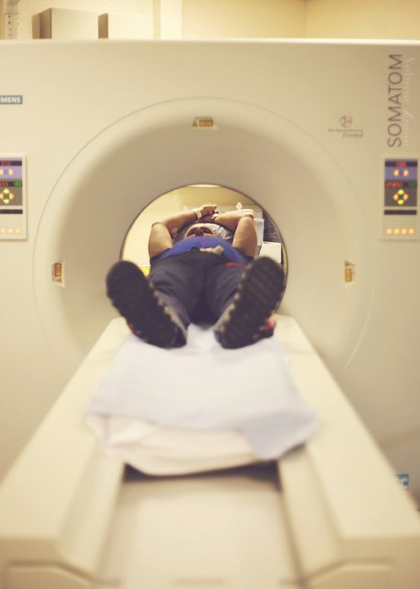 CT scans are used to diagnose diverticulitis and other abdominal problems.