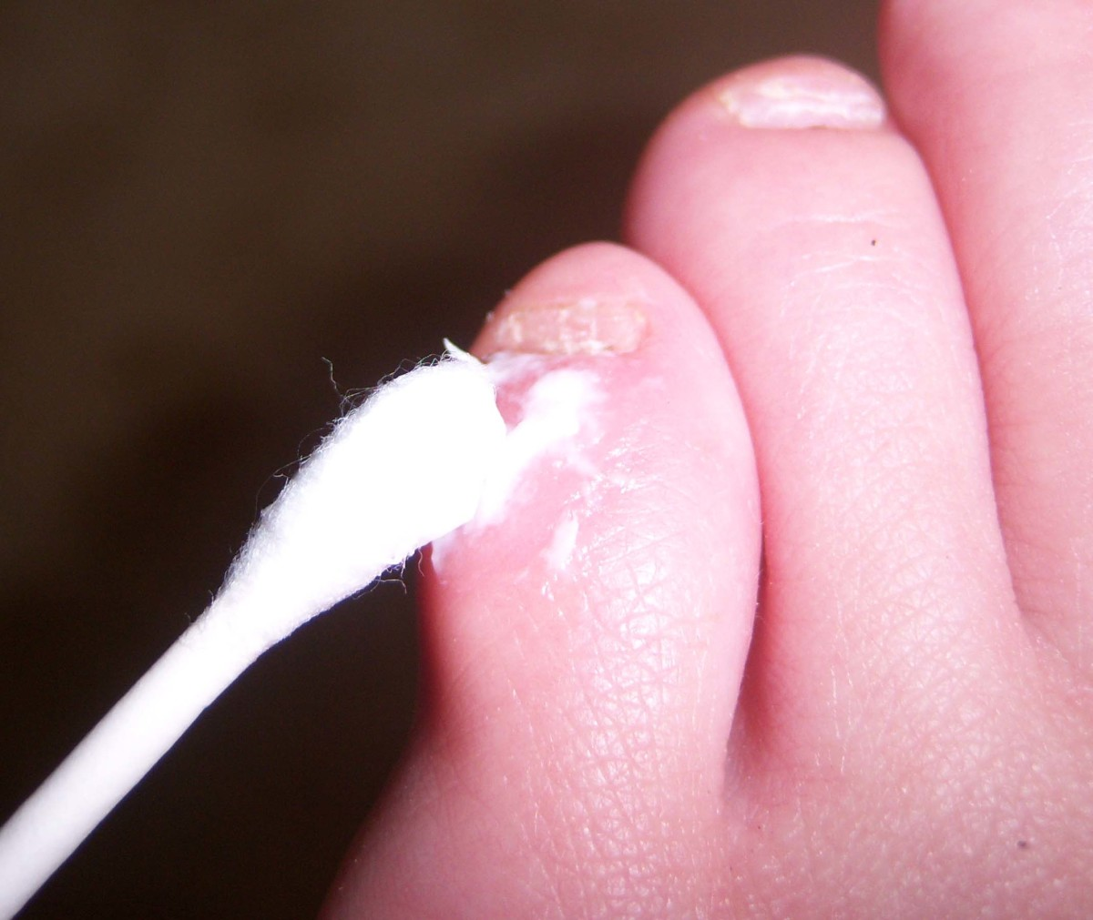 Applying antibacterial cream to the blister.