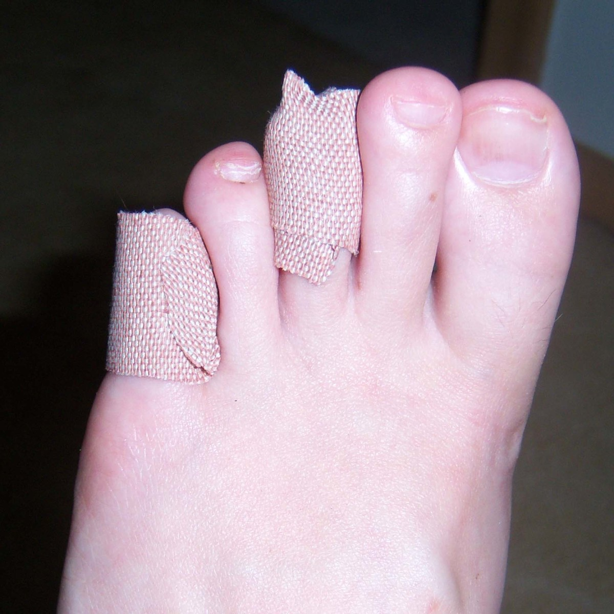 I had a worse blister on the pad of that middle toe as well.